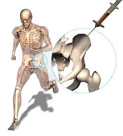 skeletonshot